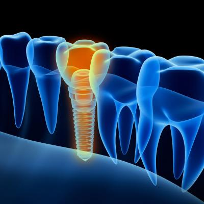 Dental Implants Winnipeg