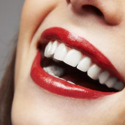 Winnipeg woman smiling with Veneers